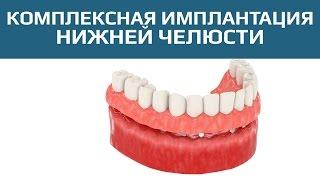 Двухэтапная имплантация с отсроченной нагрузкой. Комплексное восстановление нижней челюсти(Несъемный протез на имплантах является лучшим вариантом постоянной конструкции для восстановления зубног..., 2015-06-22T17:13:09.000Z)