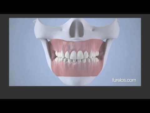 Болит непонятно какой зуб