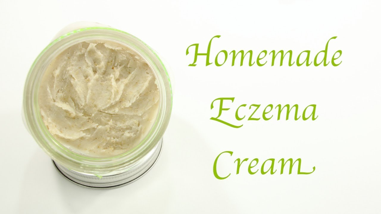 Homemade Eczema Cream Youtube