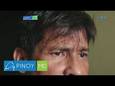 Pinoy MD: What is brain aneurysm?