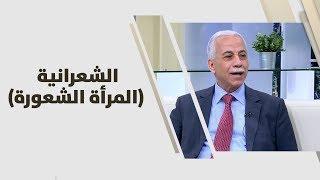 د. أحمد خير - الشعرانية (المرأة الشعورة)