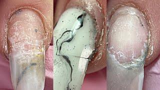 ПОЛНЫЙ ТРЕШ Такого я еще не видела Супер клей на ногтях Отслойки трещины Маникюр