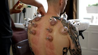 Download ASMR Chair Massage Back & Neck, No Talking - Cupping Therapy, Gua Sha Pt 2 Mp3 and Videos