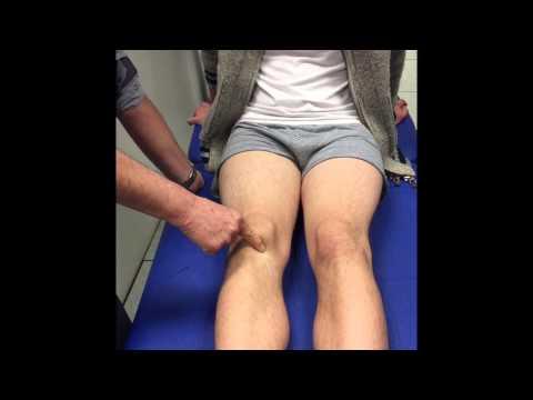 Le genou par Alain Lavigne