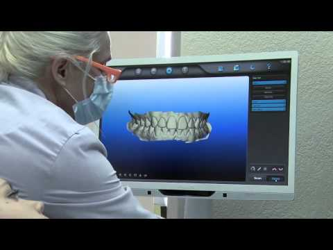 How Much Does Invisalign Cost Itero San Gos Dr Alexander Randolph Dds