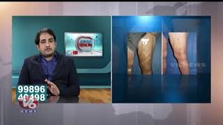 Reasons andamp; Treatment For Varicose Veins Problems | Dr Abhilash Sandhyala | Good Health