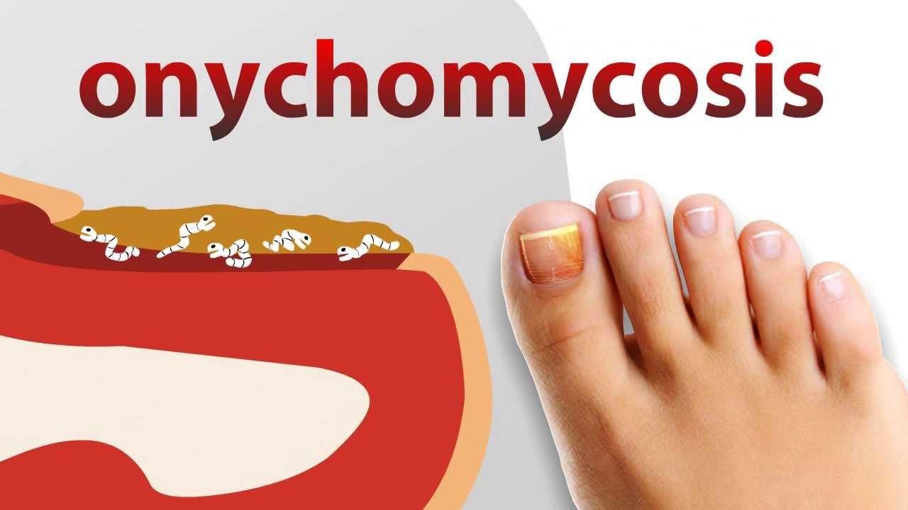 Какую обувь носить при грибке ногтей