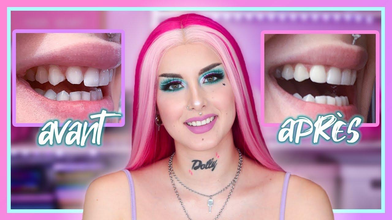 J'AI REFAIT MES DENTS ? | Facettes dentaires (Prix, Expérience, Résultat)