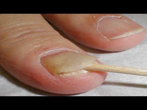 Nail Fungus Can Kill You || Cure Nasty Nail Fungus In 10 Minutes Naturally
