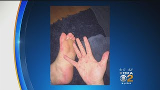 Hand, Foot And Mouth Disease Outbreak At Summer School Program