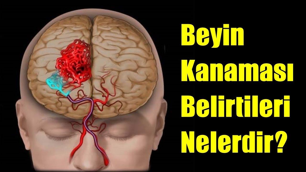Beyin kanaması geçirenler ne zaman iyileşir ile Etiketlenen Konular 42