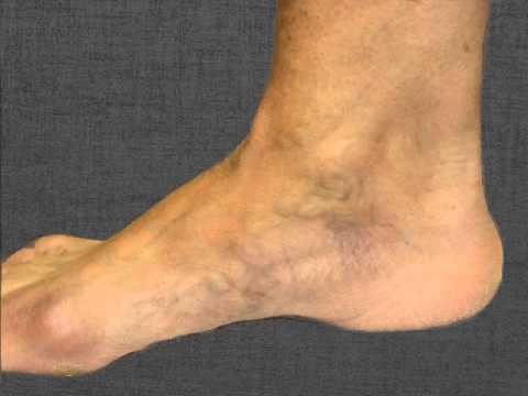 spider veins on foot