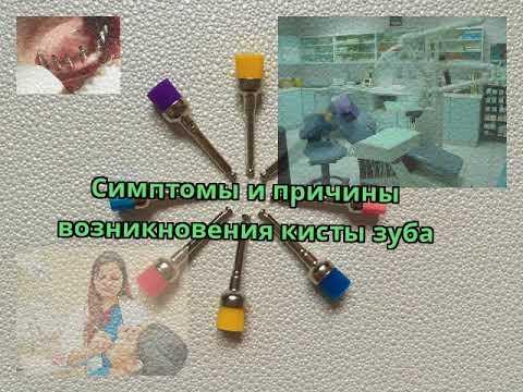 Симптомы и причины возникновения кисты зуба