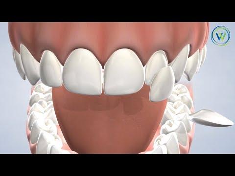 Porcelain Veneers In Arizona | Winterholler Dental Implants & Cosmetic Dentistry