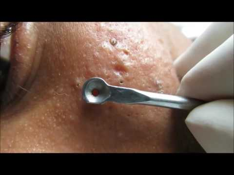 Blackheads on Malar Region