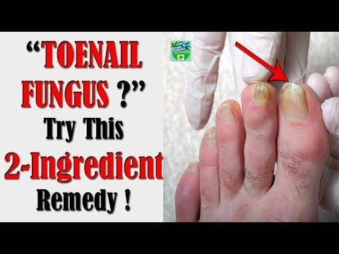 super-easy-2-ingredient-remedy-to-get-rid-of-toenail-fungus-!
