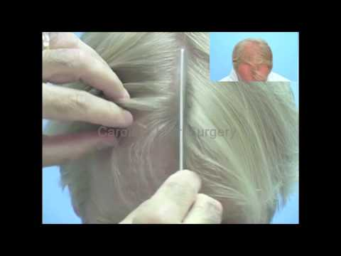 Blonde Hair Transplant | Exclusinvely FUE Hair Transplant
