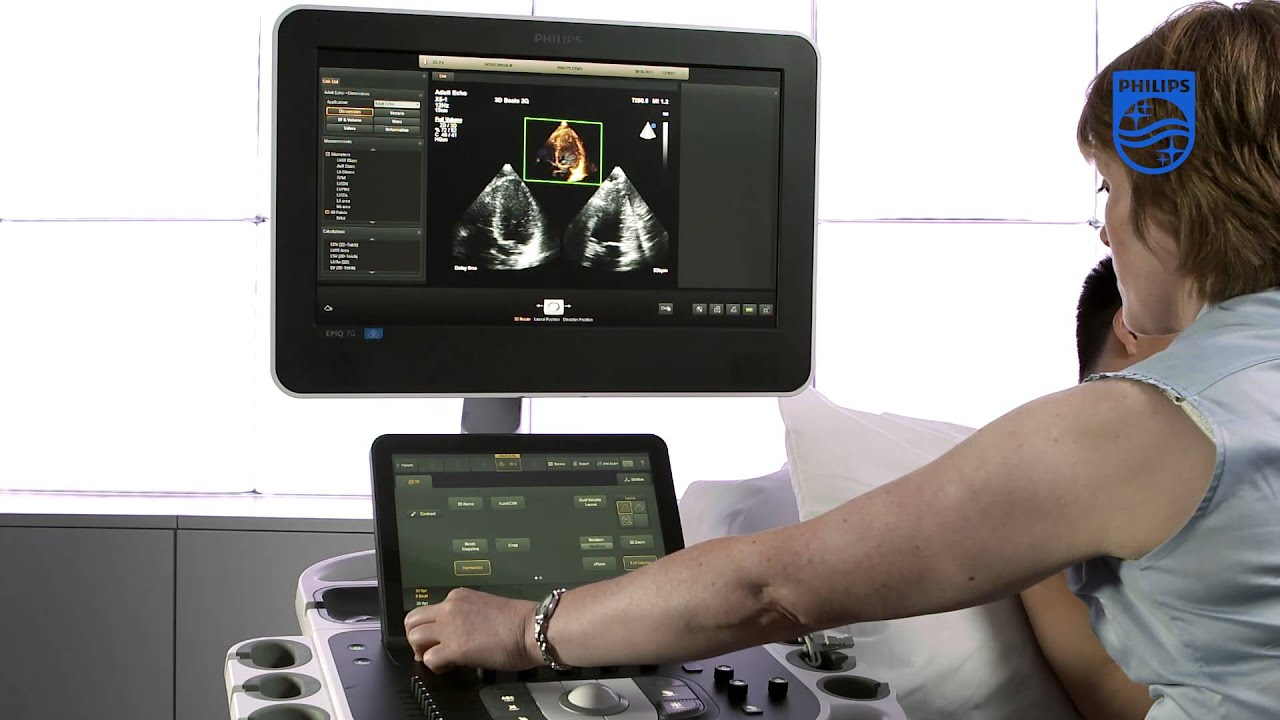 How to Perform a Full Volume Acquisition on a Philips EPIQ Ultrasound