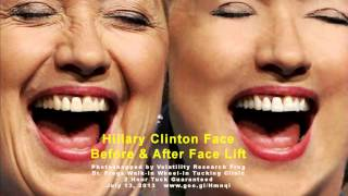 BREAKING NEWS Hillary Clinton Face Before and After Face Lift #210