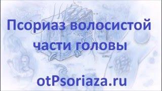 Лечение псориаза кожи головы