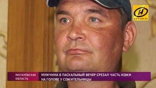 Житель Бобруйска снял с жены скальп после праздничного ужина