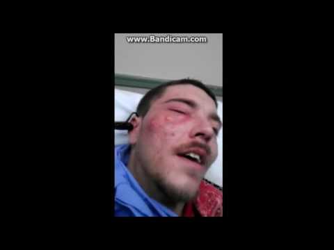 Adamın yüzündeki büyük sivilce.. acne blasting...irin nasıl patlıyor..Voladura del Acné