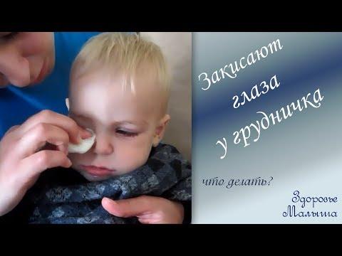 Болит глазик у ребенка