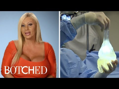 Botched And Its Most Intense Breast Implant Surgeries | E!