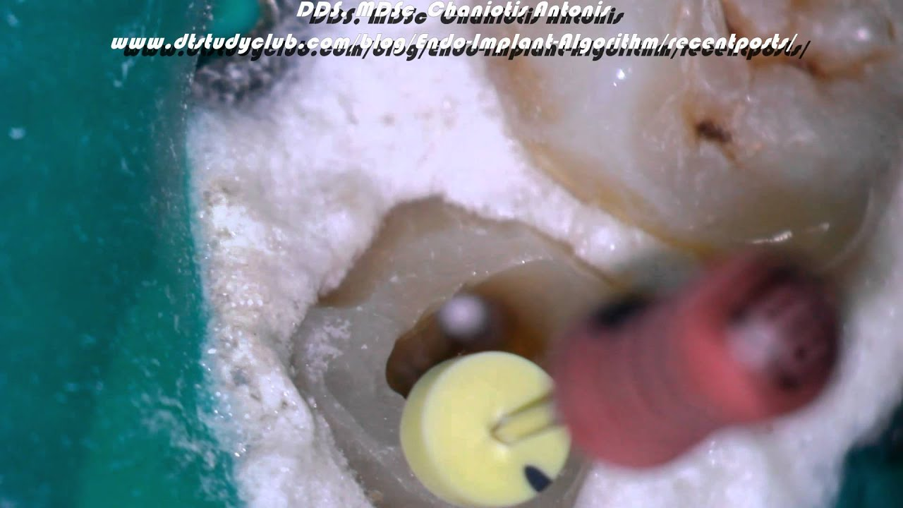 Challenging Root Canal Anatomy Management - YouTube