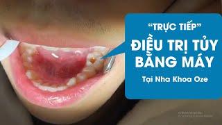Điều trị tủy răng máy tại Nha Khoa Oze