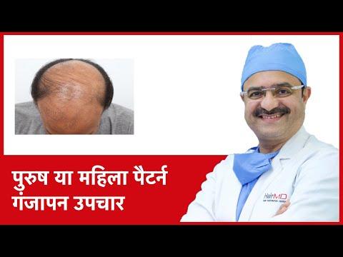 Male or Female Pattern Baldness Treatments (पुरुष या महिला पैटर्न गंजापन उपचार) | (In HINDI)
