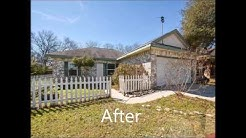 Before and After Photos in Kyle Texas