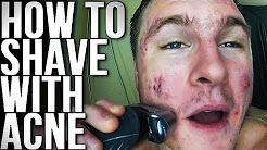hqdefault - Does Using An Electric Shaver Cause Acne