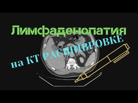 Лимфаденопатия средостения и брюшной полости на КТ расшифровке снимков с диска. Кисты обеих почек.
