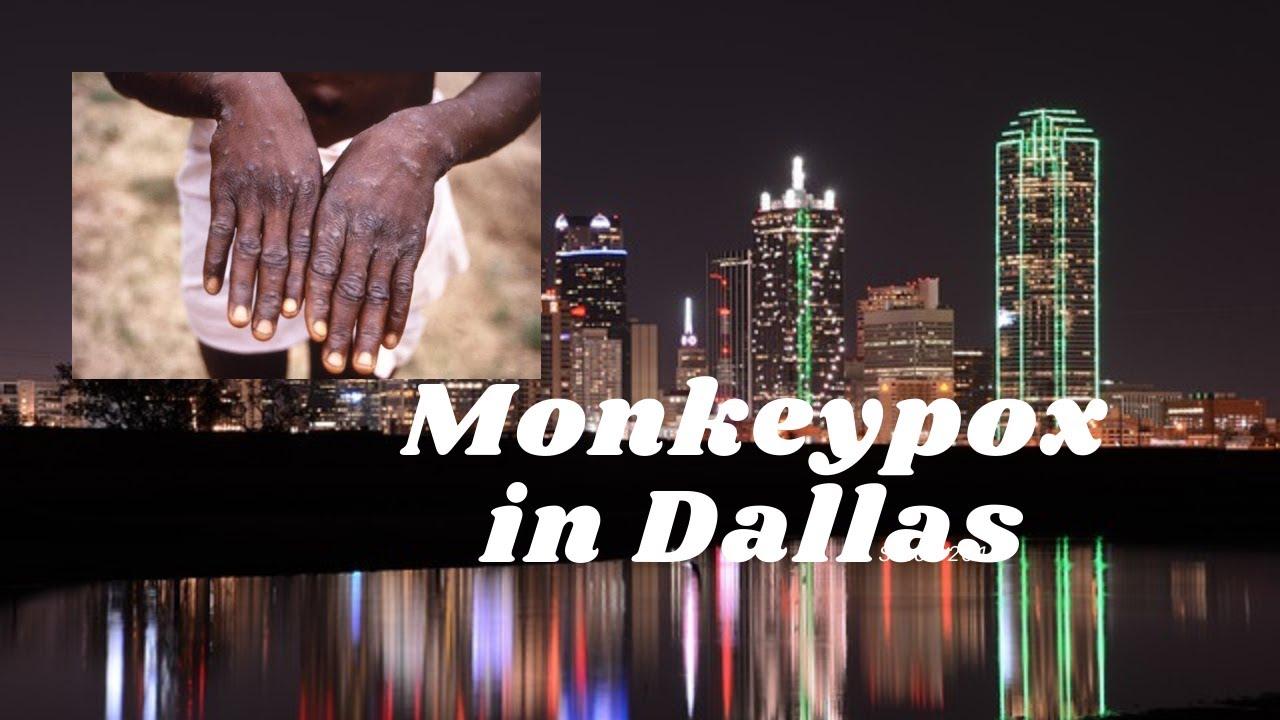 Case of monkeypox confirmed in Dallas traveler who had recently ...