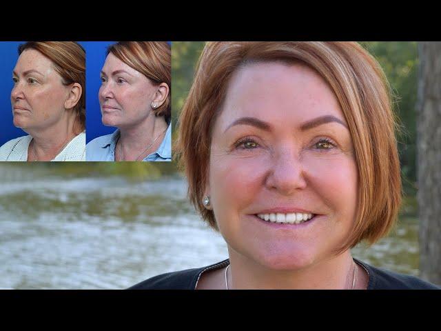 Helen's Transformation Story