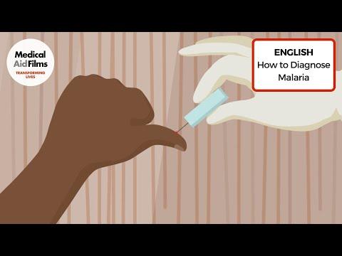 How to Diagnose Malaria
