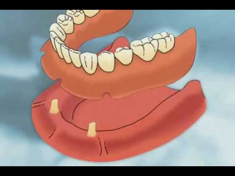 Dr. Roy Blake Shares a Video on Dentures in West Palm Beach, FL