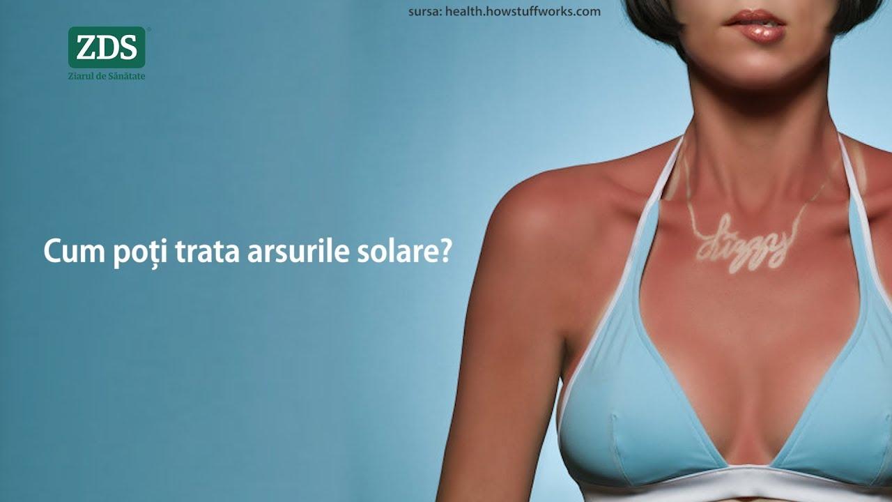 arsuri solare dureri articulare