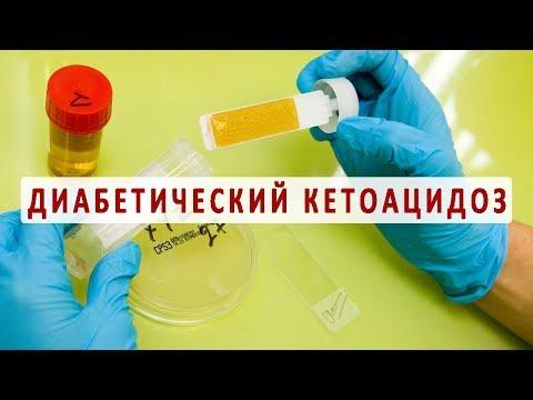 Причины, симптомы и лечение диабетического кетоацидоза | жизньдиабетика | диабетический | кетоацидоз | диабетиков | сахарный | гликемия | уровень | лечение | диабета | сахара