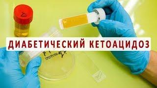 Причины, симптомы и лечение диабетического кетоацидоза