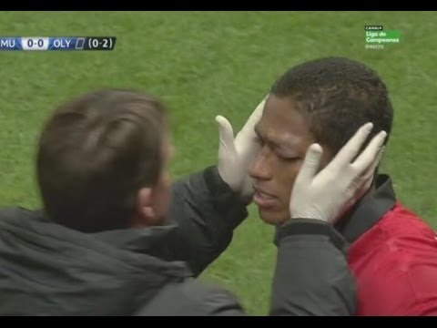 Antonio Valencia Eye Injury vs Olympiacos !!