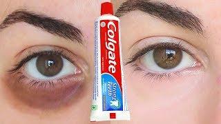 E olhos que funciona o olheiras inchados para