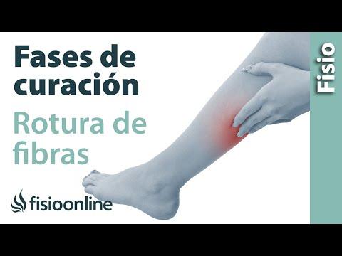 Rotura de fibras del gemelo o gastrocnemio, una lesión frecuente ...