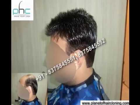 Best hair weaving cost price centres for men women in delhi ncr best hair weaving cost price centres for men women in delhi ncr noida gurgaon india pmusecretfo Choice Image