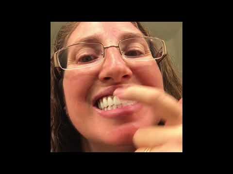 Realist Gum Design on Permanent Dentures- Looks great but....(#58)