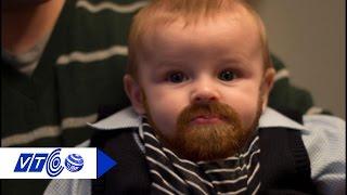 Kỳ lạ bé trai mới 1 tuổi đã dậy thì   VTC