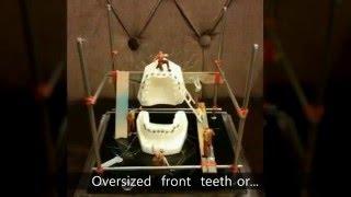 Who needs  Non Extraction Orthodontic treatment?