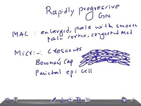 QUICK PATHOLOGY: Rapid Progressive Glomerulonephritis RPGN