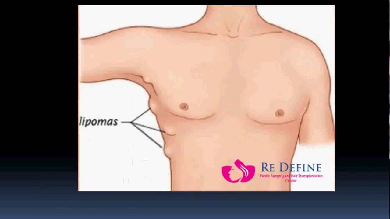 Lipoma removal the most effective method 69
